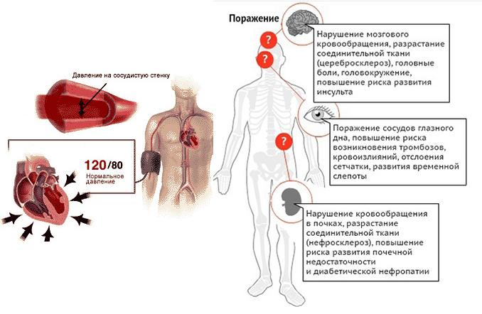 гипертония и йога