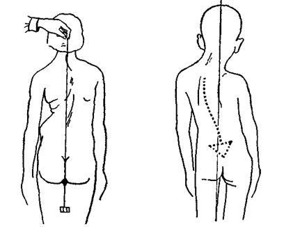 Кривой позвоночник у грудничков