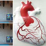 Ишемическая болезнь сердца (ИБС) и йога