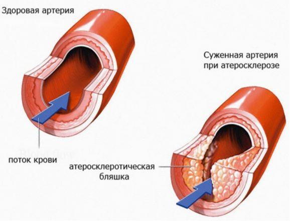 ишемическая болезнь сердца йога