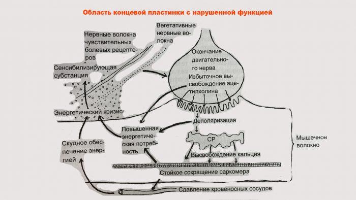 миофасциальный синдром