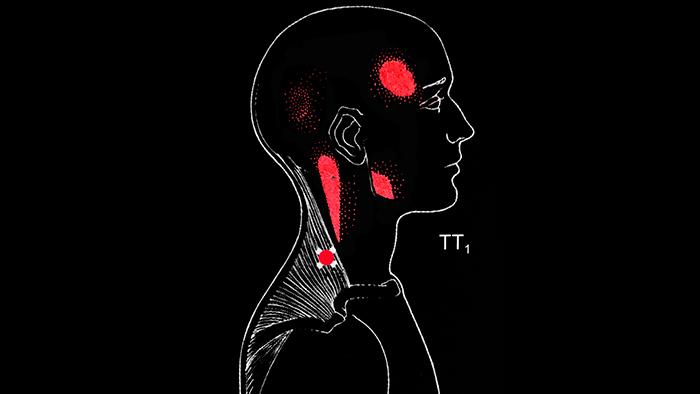 триггерная точка в трапециевидной мышце