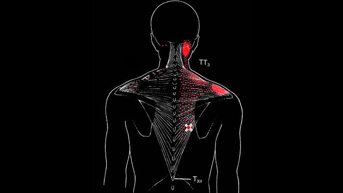триггерные точки в нижней части трапециевидной мышцы