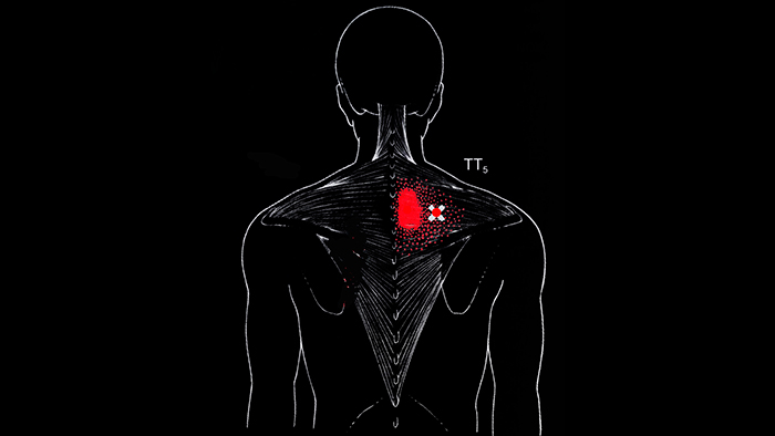 триггерные точки в средней части трапециевидной мышцы