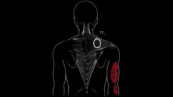 триггерные точки в трапециевидной мышце