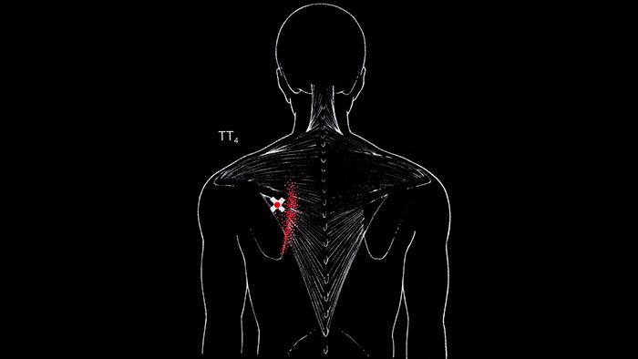 триггеры в трапециевидной мышце