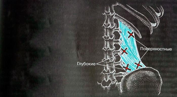 Квадратная мышца поясницы Триггерные точки