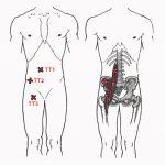 Триггерные точки и растяжка подвздошно-поясничной мышцы