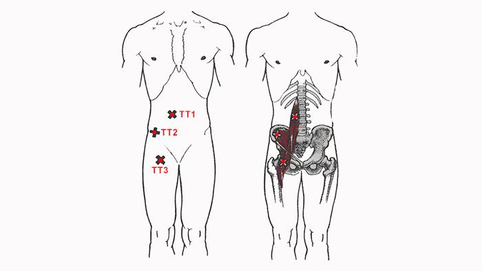 Триггерные точки подзвдошно-поясничной мышцы