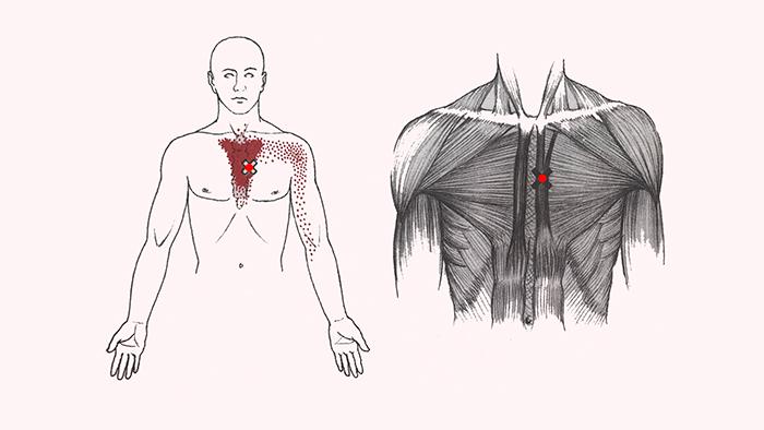 боль в плече и груди