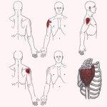 Боль в плече из триггерных точек