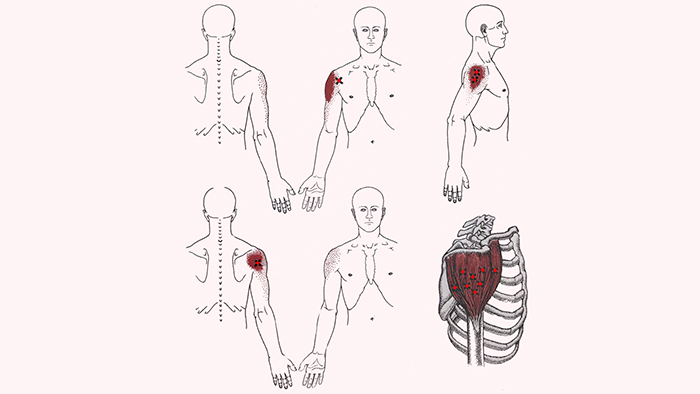 боль в плече и плечевом суставе
