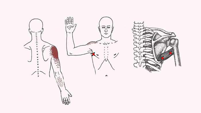 боль в плече и руке