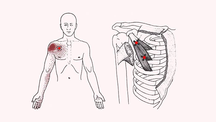 боль в плечевом суставе причины