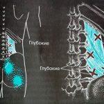 Квадратная мышца поясницы. Триггерные точки, упражнения для снятия спазма и боли