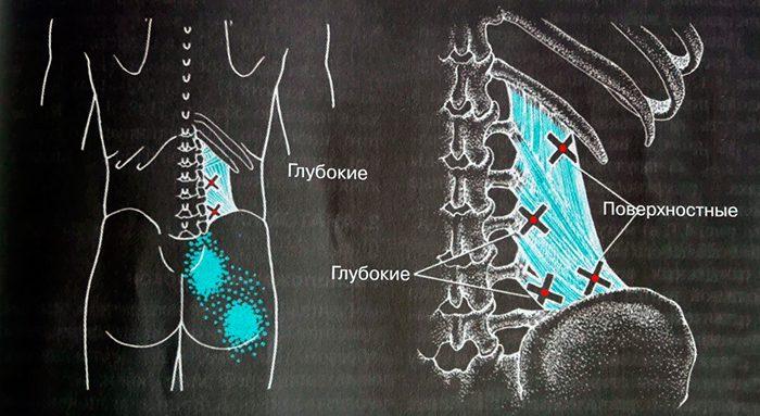 Карта триггерных точек с отраженными болями