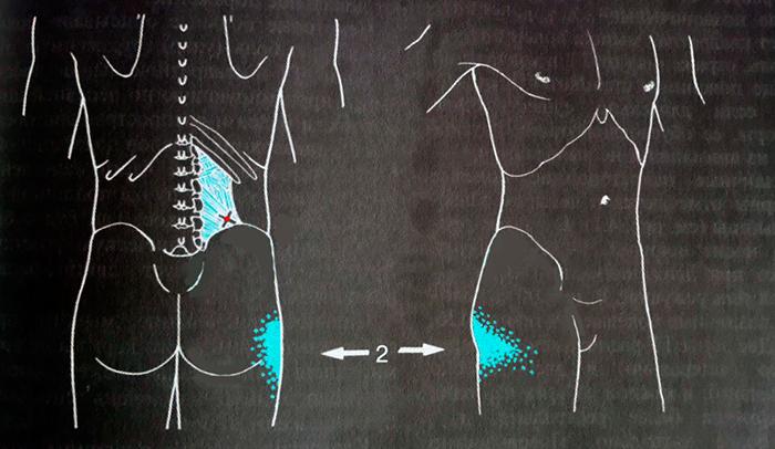квадратная мышца поясницы триггеры