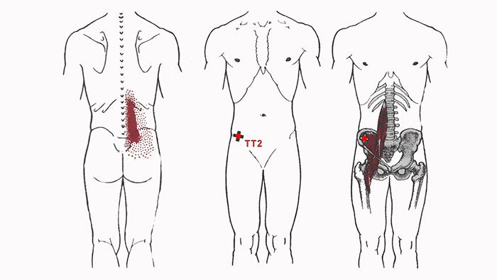 синдром-подвздошно-поясничной-мышцы