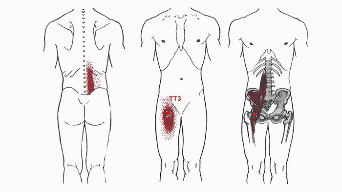 спазм-подвздошно-поясничной-мышцы