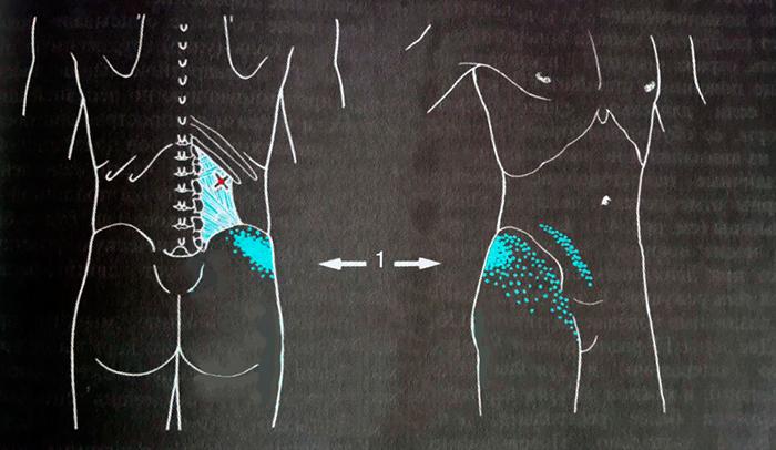 триггерные точки в квадратной мышце поясницы