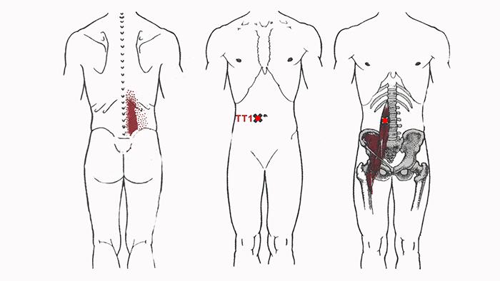 триггеры подвздошно поясничной мышцы
