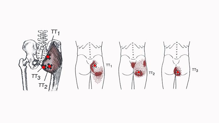 боль в большой ягодичной мышце