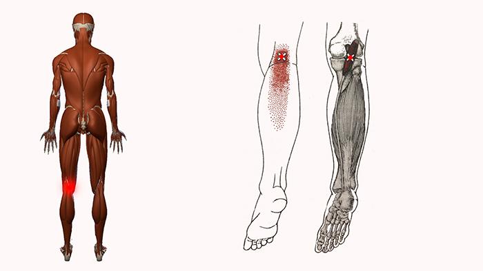 болит нога сзади колена