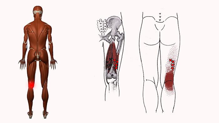 болят колени сзади