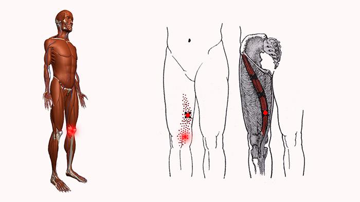 колено боль