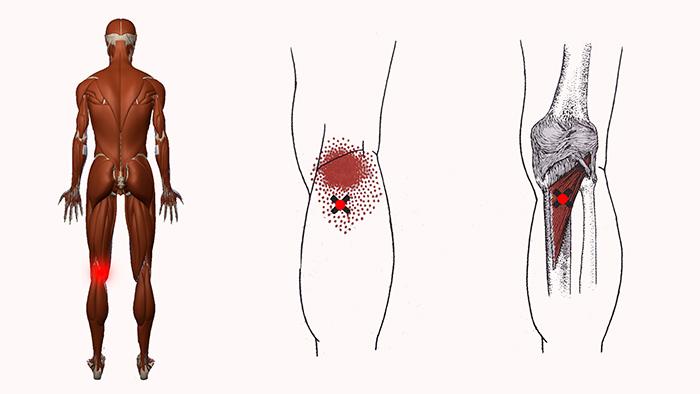 сильно болят колени
