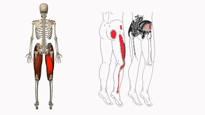 болят мышцы бедра