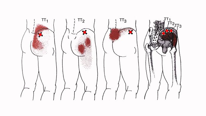 триггерные точки средней ягодичной мышцы