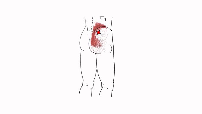 триггерные точки в средней ягодичной мышце