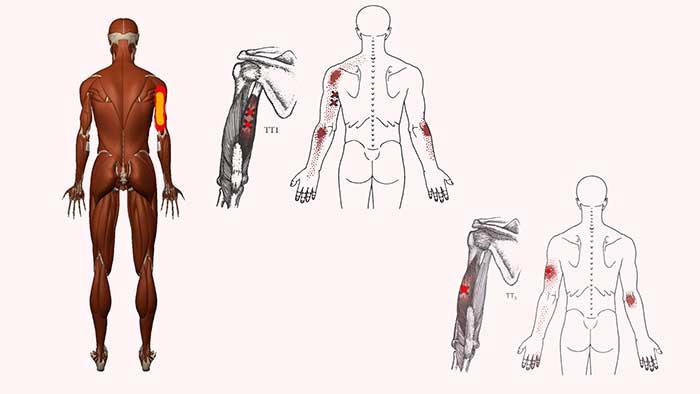 боль по задней поверхности плеча