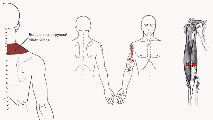 боль в спине и плече