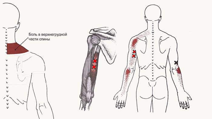боль в спине и руке