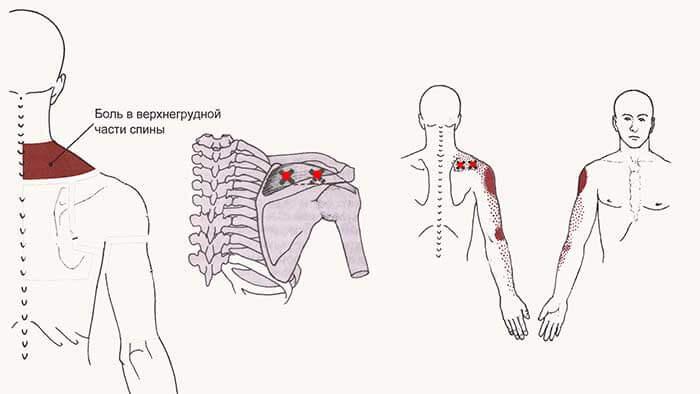боль в спине из триггерных точек