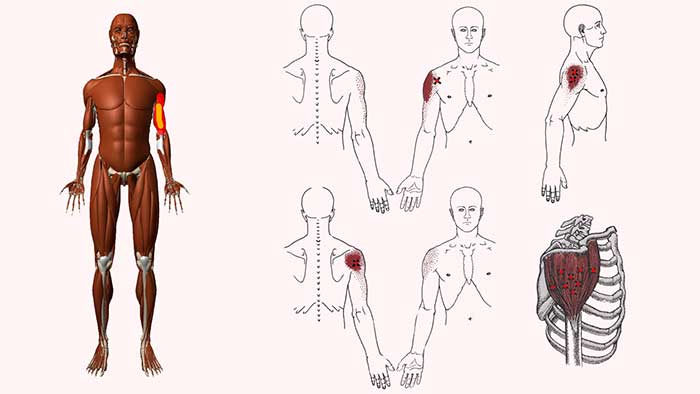 дельтовидная мышца триггеры