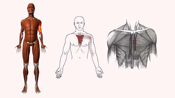 грудинная мышца триггеры