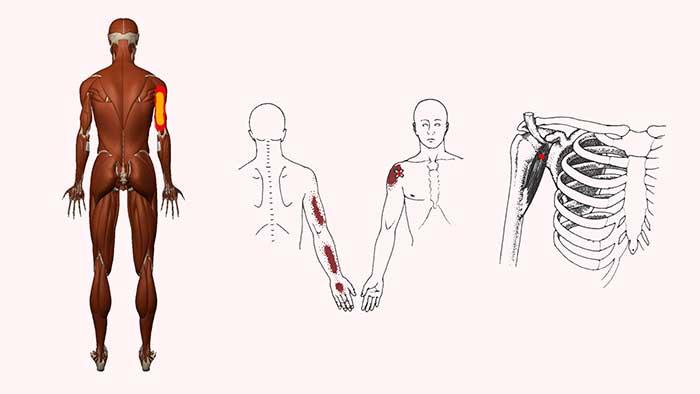 клювовидно плечевая мышца триггерные точки