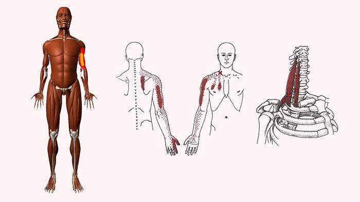лестничные мышцы триггеры