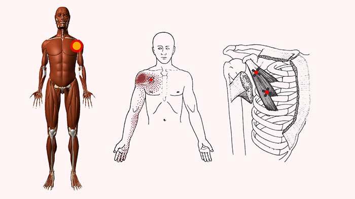 триггерные точки плечевого сустава