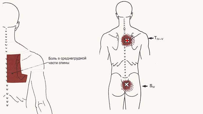 многораздельные мышцы