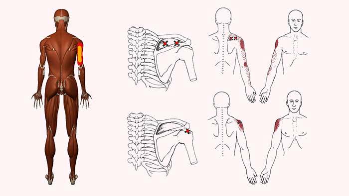 надостная мышца триггерные точки