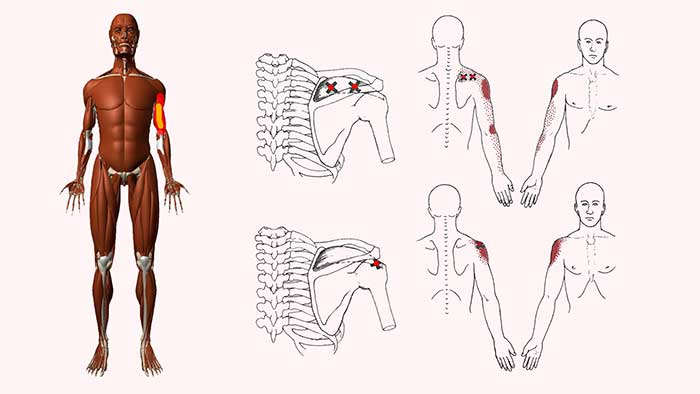 надостная мышца триггеры