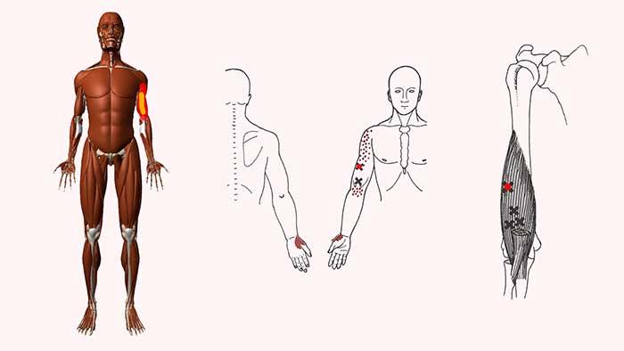 плечевая мышца триггеры
