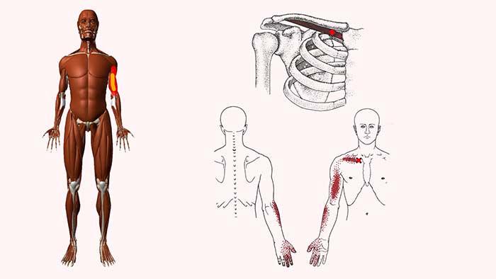 подключичная мышца триггерные точки