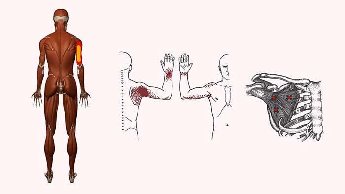 подлопаточная мышца триггерные точки