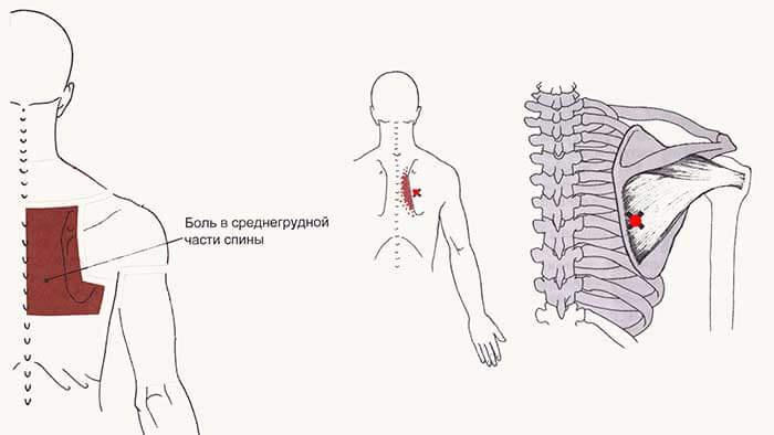 подостная мышца