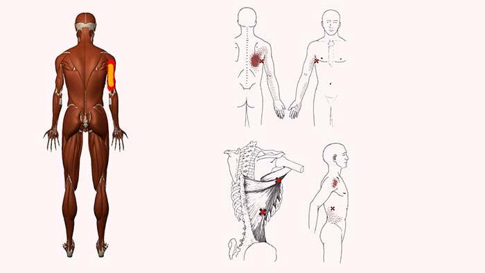 широчайшая мышца спины триггерные точки